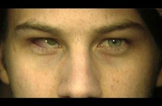 3D Eyeball Replacement (Part 1) 7